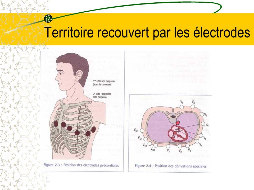 Le branchement Connecter les électrodes à lappareil par lintermédiaire des fiches de branchement Commencer par séparer les fiches : -Rouge, noir, V1, V2, V3, pour le coté droit du patient -Jaune, vert, V4, V5, V6, pour le coté gauche du patient