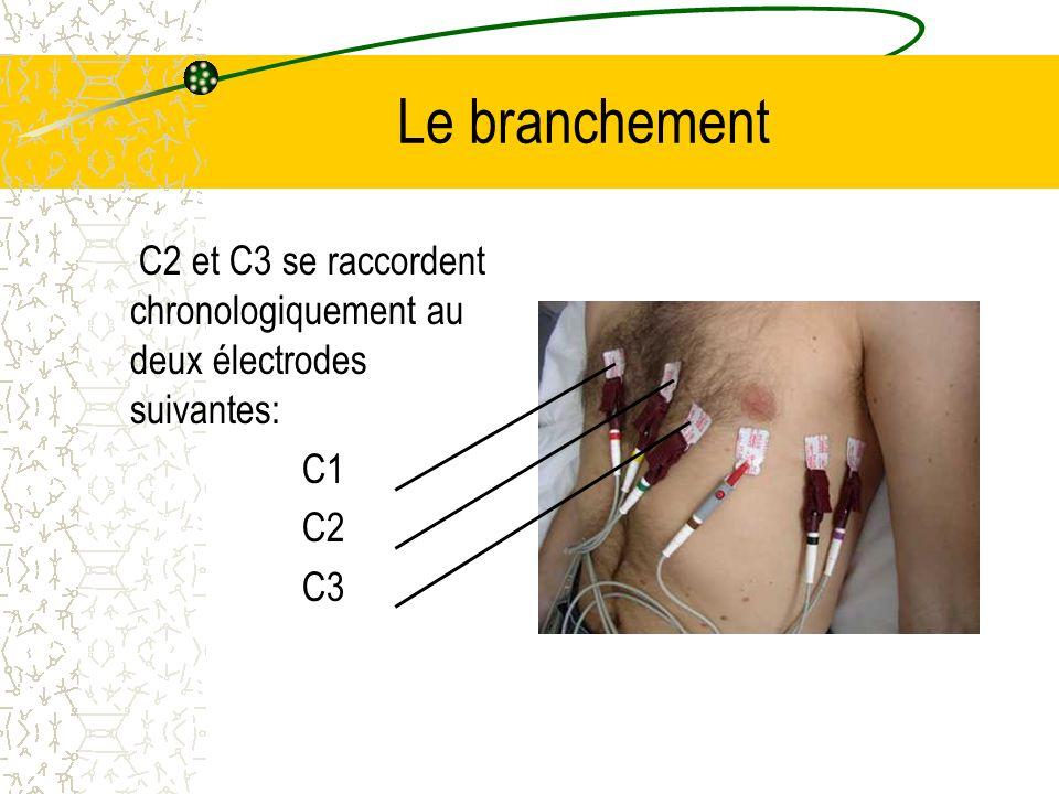 Le branchement C2 et C3 se raccordent chronologiquement au deux électrodes suivantes: C1 C2 C3