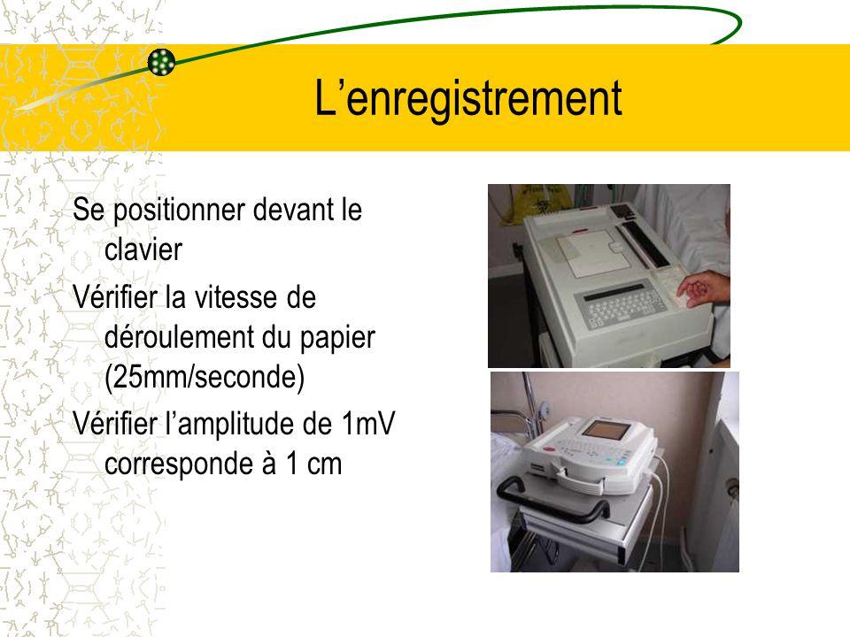 Lenregistrement Se positionner devant le clavier Vérifier la vitesse de déroulement du papier (25mm/seconde) Vérifier lamplitude de 1mV corresponde à