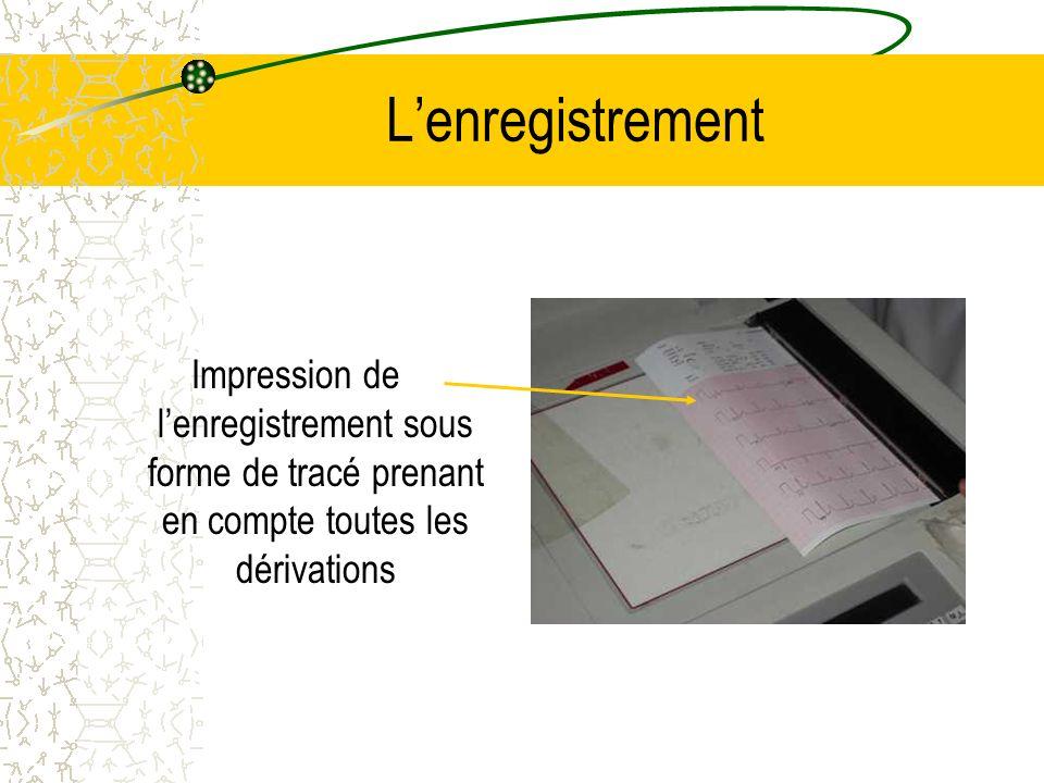 Lenregistrement Impression de lenregistrement sous forme de tracé prenant en compte toutes les dérivations