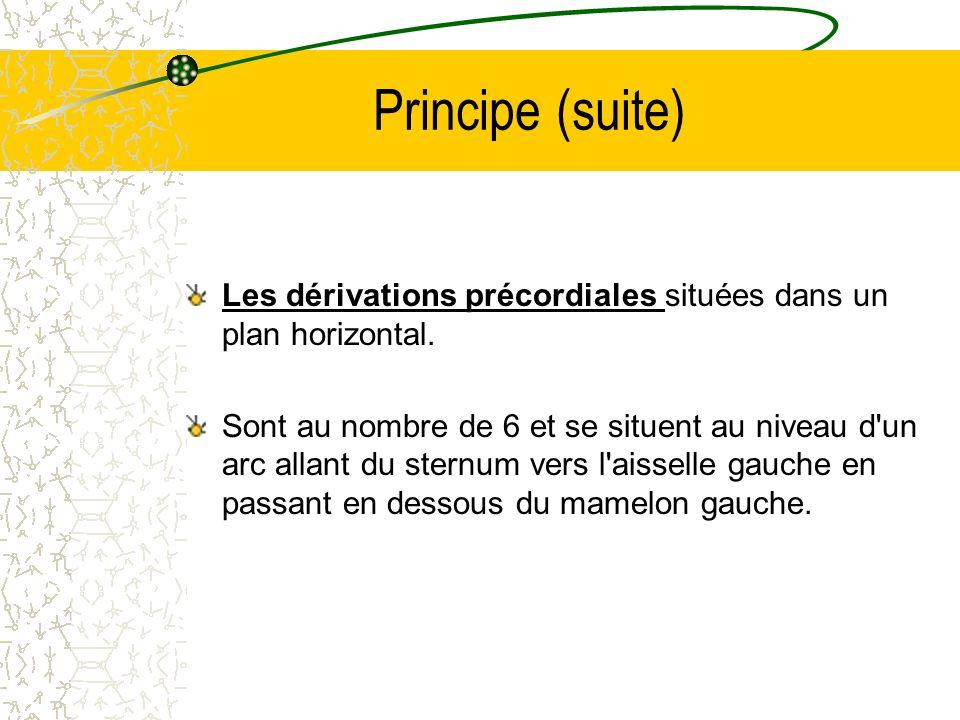 Principe (suite) Les dérivations précordiales situées dans un plan horizontal. Sont au nombre de 6 et se situent au niveau d'un arc allant du sternum