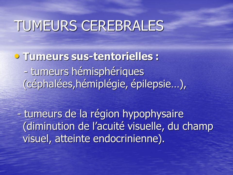 TUMEURS CEREBRALES Tumeurs sus-tentorielles : Tumeurs sus-tentorielles : - tumeurs hémisphériques (céphalées,hémiplégie, épilepsie…), - tumeurs hémisp