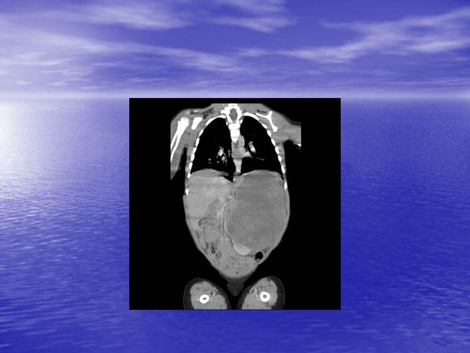TUMEURS OSSEUSES Douleurs osseuses longtemps avant diagnostic, radiologie puis IRM/scanner, destruction de los et envahissement des parties molles Douleurs osseuses longtemps avant diagnostic, radiologie puis IRM/scanner, destruction de los et envahissement des parties molles Biopsie: Ostéosarcome ou sarcome dEwing Biopsie: Ostéosarcome ou sarcome dEwing Métastases pulmonaires scanner P, osseuses scintigraphie technetium Métastases pulmonaires scanner P, osseuses scintigraphie technetium Trt: chimio puis chirugie, généralement avec reconstruction, puis chimio en fonction histologie (C résiduelles) durée du trt: 1 an Trt: chimio puis chirugie, généralement avec reconstruction, puis chimio en fonction histologie (C résiduelles) durée du trt: 1 an 60 à 70 % de guérison mais pronostic fonctionnel en jeu, changement de prothèse 60 à 70 % de guérison mais pronostic fonctionnel en jeu, changement de prothèse