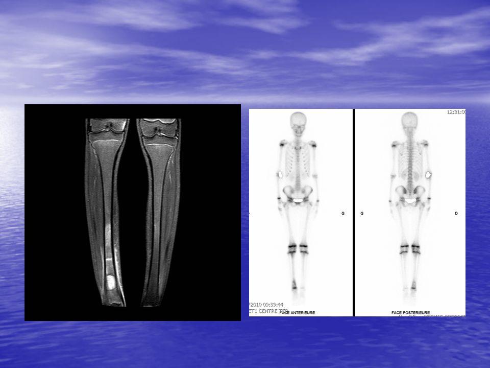 TAUX DE GUERISON 80-95 % 80-95 % –Lymphome de Burkitt –Lymphome de Hodgkin –Néphroblastome –Neuroblastome localisé –LAL