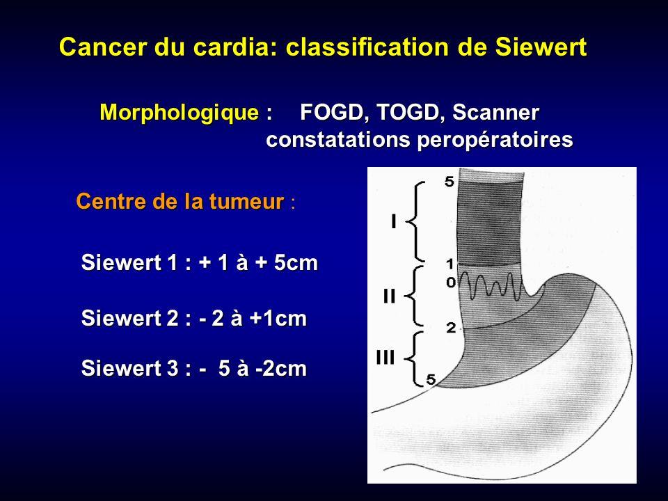 Cancer du cardia: classification de Siewert Morphologique :FOGD, TOGD, Scanner constatations peropératoires Siewert 1 : + 1 à + 5cm Siewert 2 : - 2 à