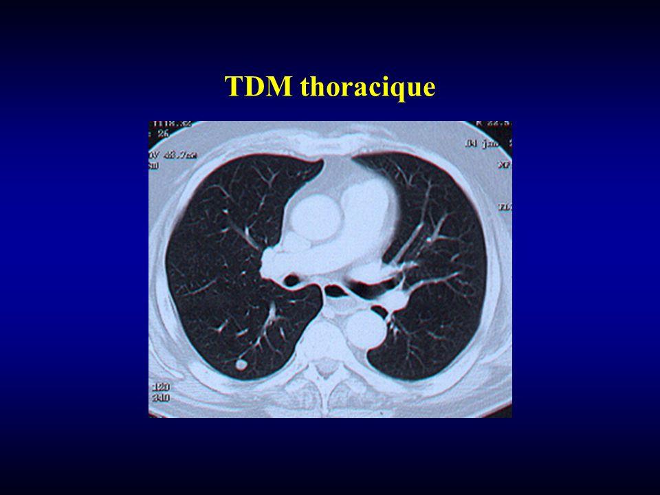 TDM thoracique