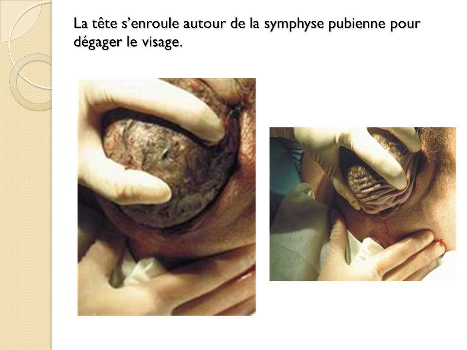 La tête senroule autour de la symphyse pubienne pour dégager le visage.