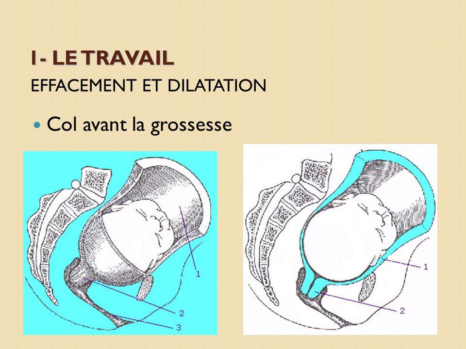 Les présentations du siège (fesses en bas) siège complet :lorsque les jambes ou les pieds descendent en premier siège décomplété :les jambes sont étendues devant le tronc