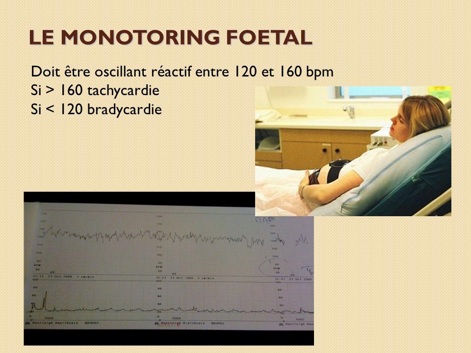 LE MONOTORING FOETAL Doit être oscillant réactif entre 120 et 160 bpm Si > 160 tachycardie Si < 120 bradycardie