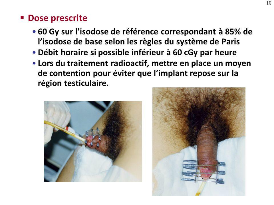 10 Dose prescrite 60 Gy sur lisodose de référence correspondant à 85% de lisodose de base selon les règles du système de Paris Débit horaire si possib