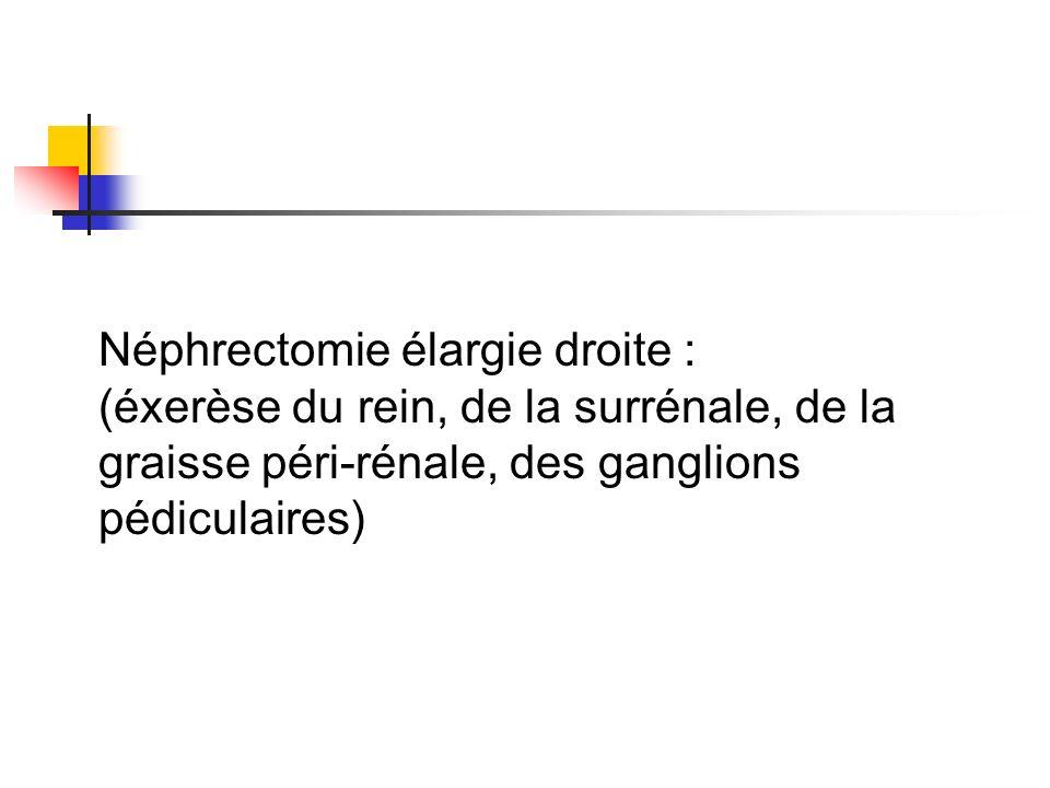 Néphrectomie élargie droite : (éxerèse du rein, de la surrénale, de la graisse péri-rénale, des ganglions pédiculaires)