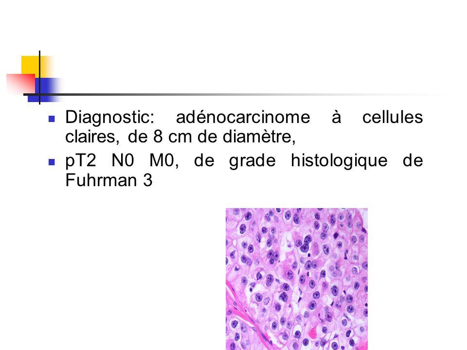 Diagnostic: adénocarcinome à cellules claires, de 8 cm de diamètre, pT2 N0 M0, de grade histologique de Fuhrman 3