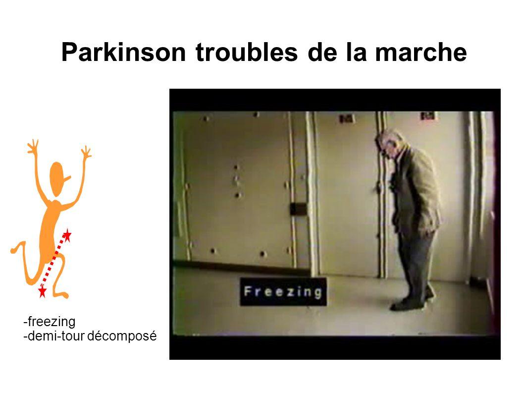 Parkinson troubles de la marche -freezing -demi-tour décomposé