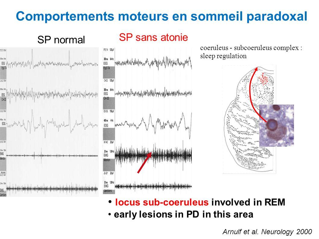 Comportements moteurs en sommeil paradoxal SP normal SP sans atonie coeruleus - subcoeruleus complex : sleep regulation locus sub-coeruleus involved i