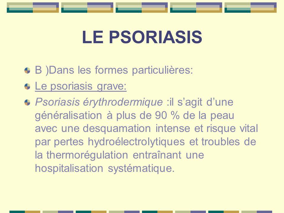 LE PSORIASIS Psoriasis arthropathique :atteinte dune ou plusieurs articulations ainsi que de la colonne vertébrale donnant un aspect de rhumatisme inflammatoire.
