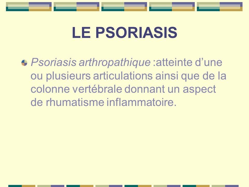 LE PSORIASIS Psoriasis pustuleux :il peut apparaître demblée ou survenir sur un pso ancien pso pustuleux palmo-plantaire pustules jaunâtres évoluant par poussées avec handicap fonctionnel pso pustuleux généralisé avec altération de létat général avec pronostic vital