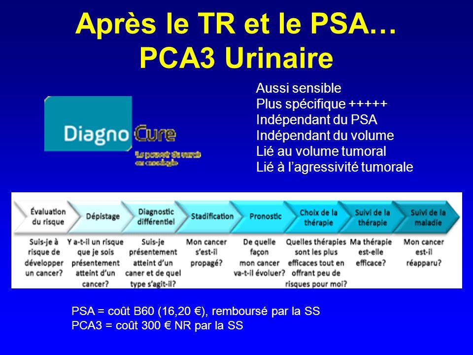Après le TR et le PSA… PCA3 Urinaire PSA = coût B60 (16,20 ), remboursé par la SS PCA3 = coût 300 NR par la SS Aussi sensible Plus spécifique +++++ In