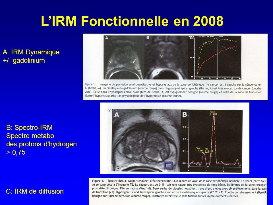 LIRM Fonctionnelle en 2008 A: IRM Dynamique +/- gadolinium B: Spectro-IRM Spectre metabo des protons dhydrogen > 0,75 C: IRM de diffusion