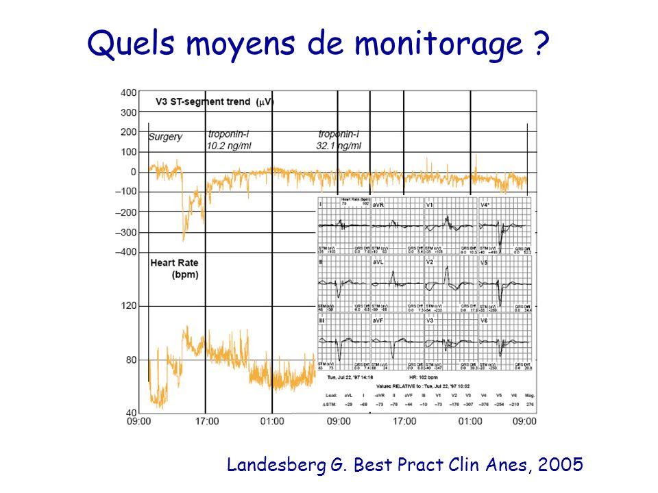 Quels moyens de monitorage ? Landesberg G. Best Pract Clin Anes, 2005