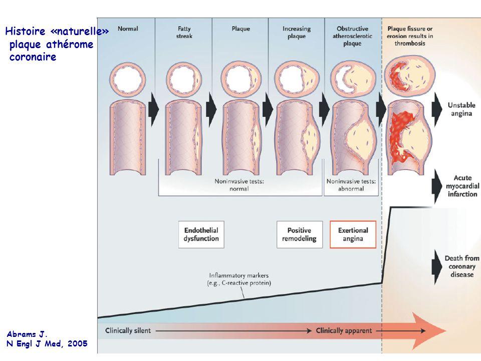 Abrams J. N Engl J Med, 2005 Histoire «naturelle» plaque athérome coronaire