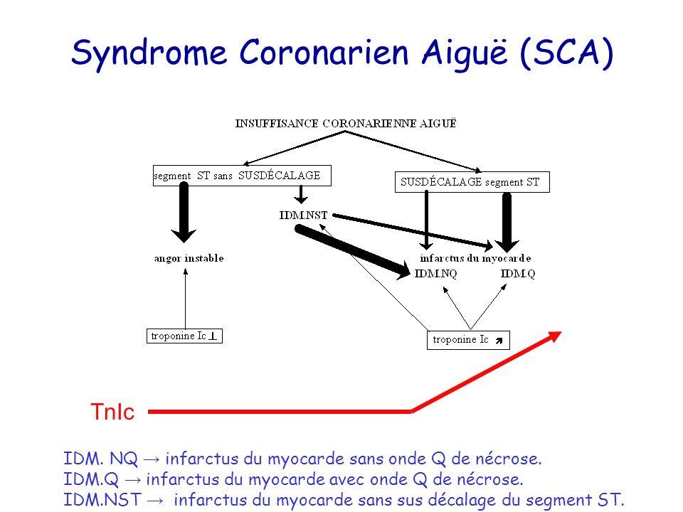 Syndrome Coronarien Aiguë (SCA) IDM. NQ infarctus du myocarde sans onde Q de nécrose. IDM.Q infarctus du myocarde avec onde Q de nécrose. IDM.NST infa