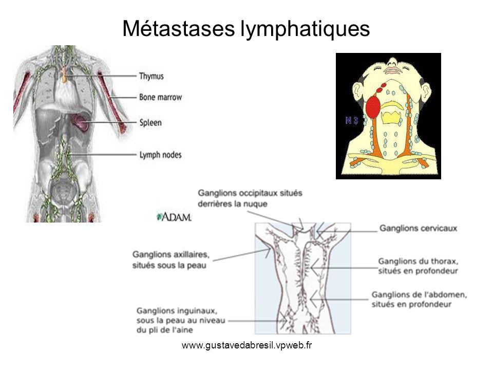 Métastases lymphatiques