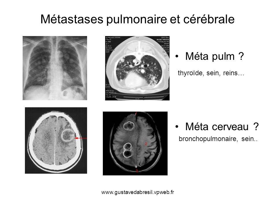 www.gustavedabresil.vpweb.fr Métastases pulmonaire et cérébrale Méta pulm ? thyroïde, sein, reins… Méta cerveau ? bronchopulmonaire, sein..