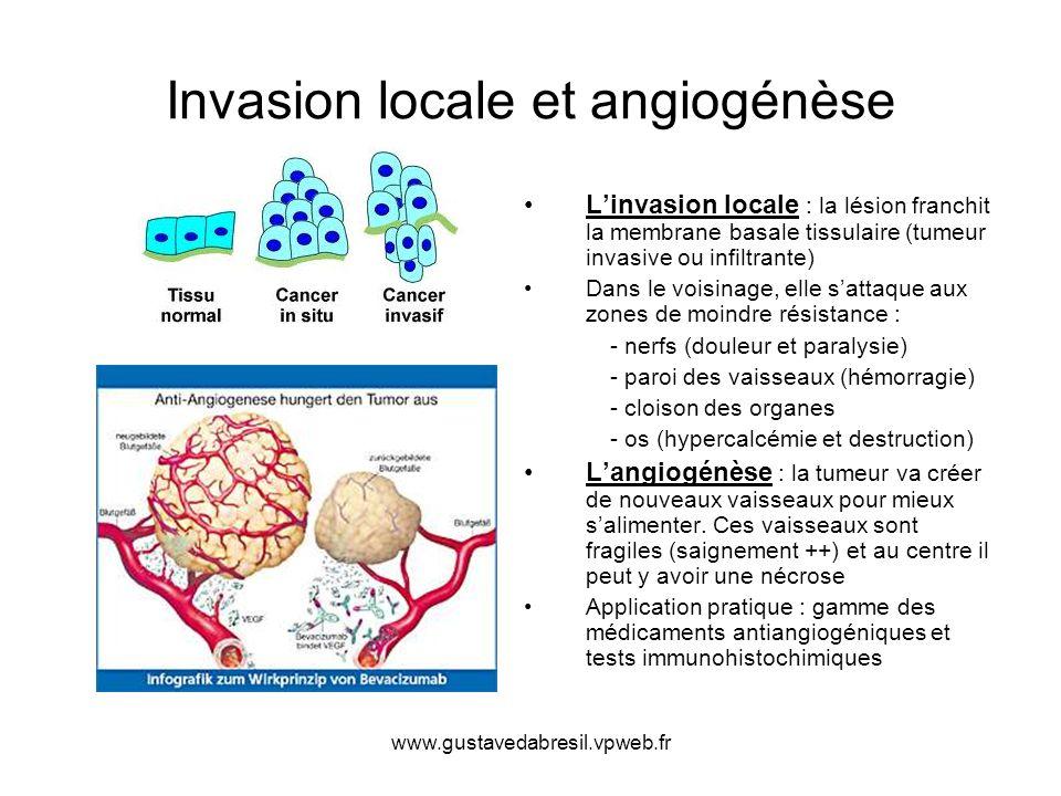 www.gustavedabresil.vpweb.fr Métastases Elles peuvent être des métastases lymphatiques, viscérales (à distance) et intracavitaires (cavité péritonéale, méninges) 1- Métastases lymphatiques (selon le drainage naturelle de lorgane) sein=aisselle / ORL=cou / poumons=médiastin / rectum, vagin= aine ganglions pelviens (utérus, vessie, prostate, côlon) --- la présence dembols lymphatiques est significative----- ---- lymphangite carcinomateuse si tout le trajet lymphatique est envahi---- 2 - Métastases à distance (le plus souvent poumons, foie, os, cerveau) on peut avoir des métastases cutanées (nodules de perméation = cancer du sein) 3 - Métastases intra-cavitaires ( méninges envahis dans le médulloblastome, carcinose péritonéale dans le cancer de lovaire et les cancers digestifs) Elles peuvent être synchrones avec le cancer doù limportance du bilan dextension Elles peuvent être tardives en apparaissant après des mois ou années Elles peuvent être révélatrices du cancer (ex : ganglions cervicaux sans cancer identifiable), il faut rechercher le cancer primitif