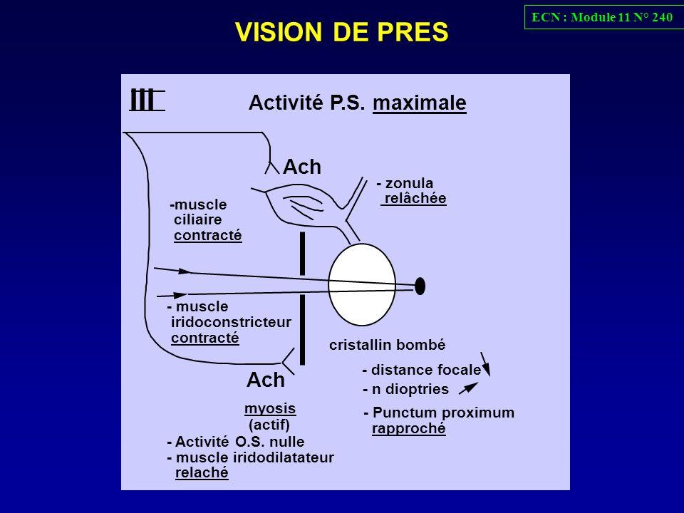 VISION DE PRES III - distance focale - Punctum proximum rapproché - zonula relâchée Ach -muscle ciliaire contracté Ach myosis - n dioptries cristallin