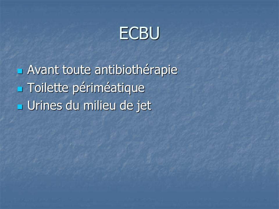ECBU Avant toute antibiothérapie Avant toute antibiothérapie Toilette périméatique Toilette périméatique Urines du milieu de jet Urines du milieu de j