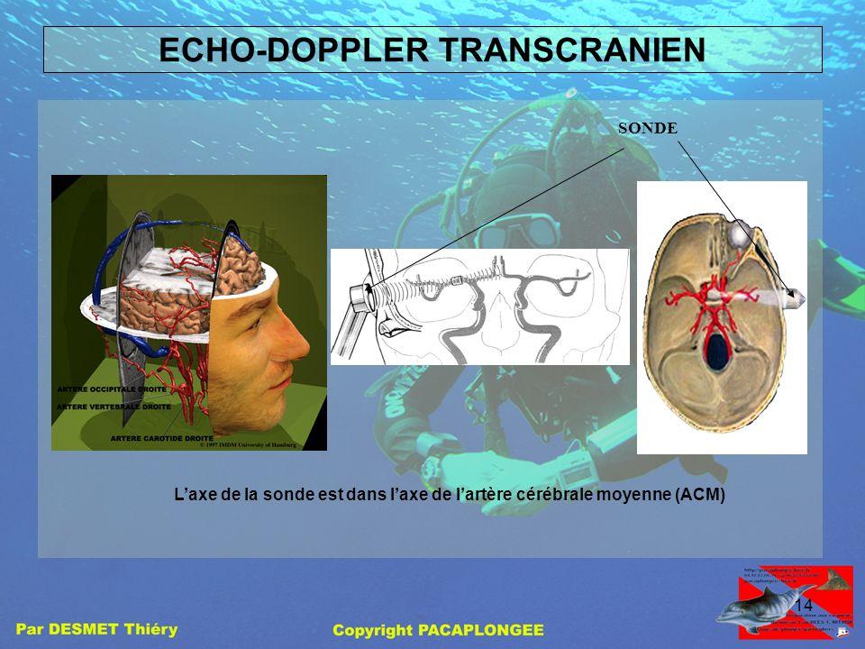 13 Comment se détecte un FOP Des examens permettent de mettre en évidences un FOP. - L'échocardiographie transoesophagienne (ETO), cet examen est lour