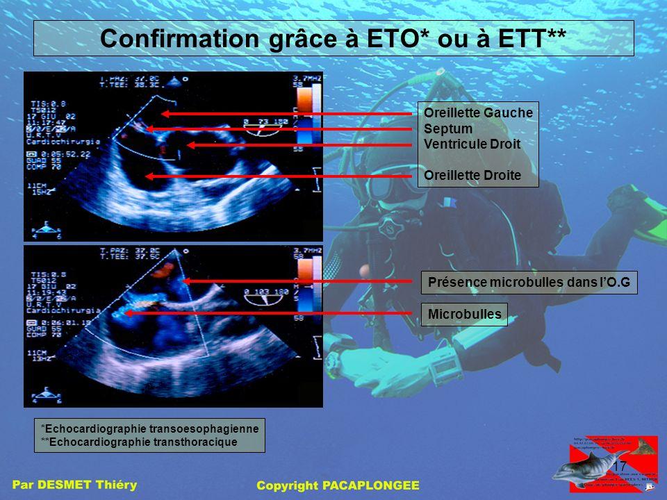 16 Déroulement de lexamen Injection de la solution sang + microbullesSonde EDTC : shunt non significatif pour une stimulation à 30 mm Hg EDTC : présen