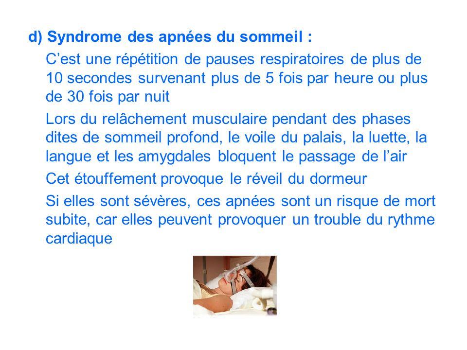 d) Syndrome des apnées du sommeil : Cest une répétition de pauses respiratoires de plus de 10 secondes survenant plus de 5 fois par heure ou plus de 3