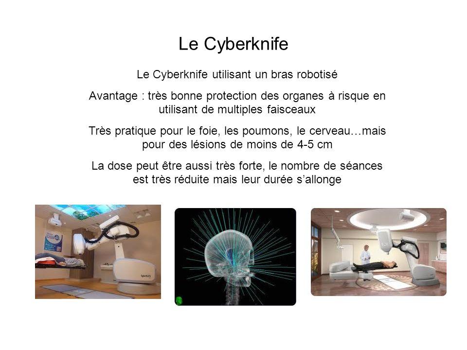 Le Cyberknife utilisant un bras robotisé Avantage : très bonne protection des organes à risque en utilisant de multiples faisceaux Très pratique pour