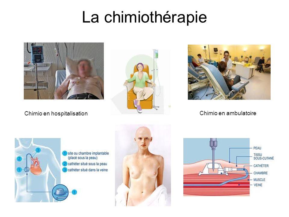 La chimiothérapie Chimio en hospitalisation Chimio en ambulatoire