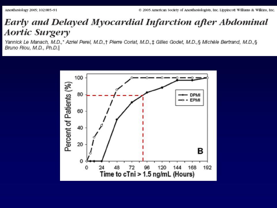 Ischémie myocardique péri-opératoire