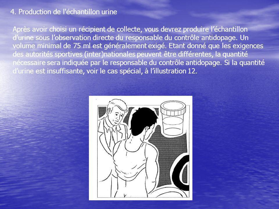 4. Production de l'échantillon urine Après avoir choisi un récipient de collecte, vous devrez produire léchantillon durine sous lobservation directe d