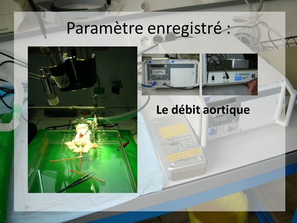 Paramètre enregistré : Le débit aortique