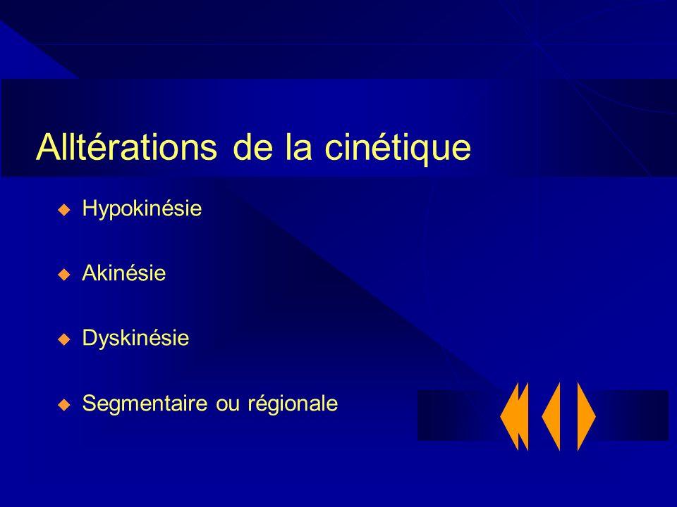 Alltérations de la cinétique Hypokinésie Akinésie Dyskinésie Segmentaire ou régionale