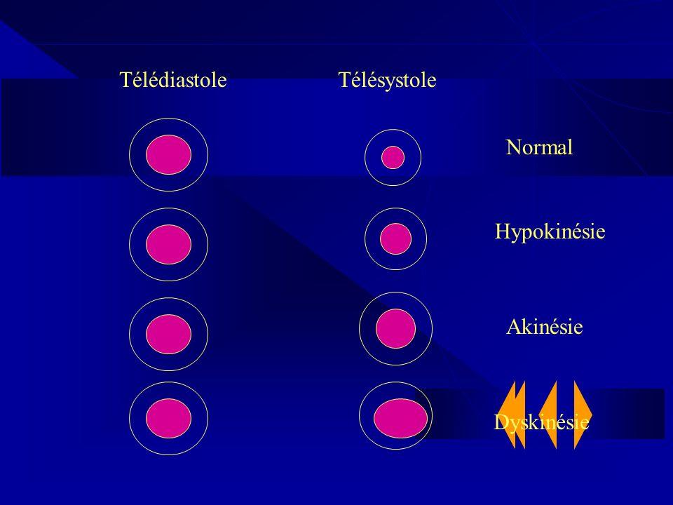 TélédiastoleTélésystole Normal Hypokinésie Akinésie Dyskinésie