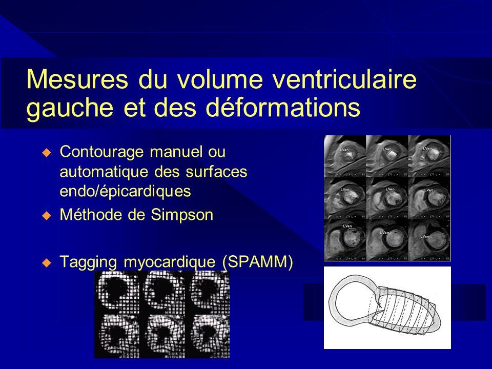 Mesures du volume ventriculaire gauche et des déformations Contourage manuel ou automatique des surfaces endo/épicardiques Méthode de Simpson Tagging