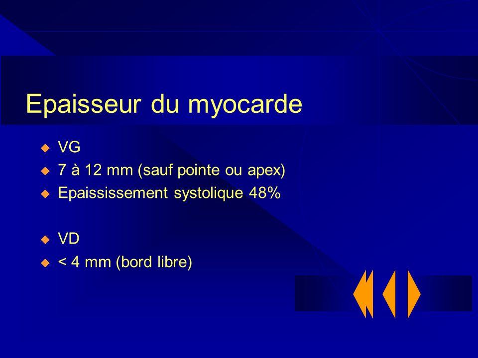 Epaisseur du myocarde VG 7 à 12 mm (sauf pointe ou apex) Epaississement systolique 48% VD < 4 mm (bord libre)