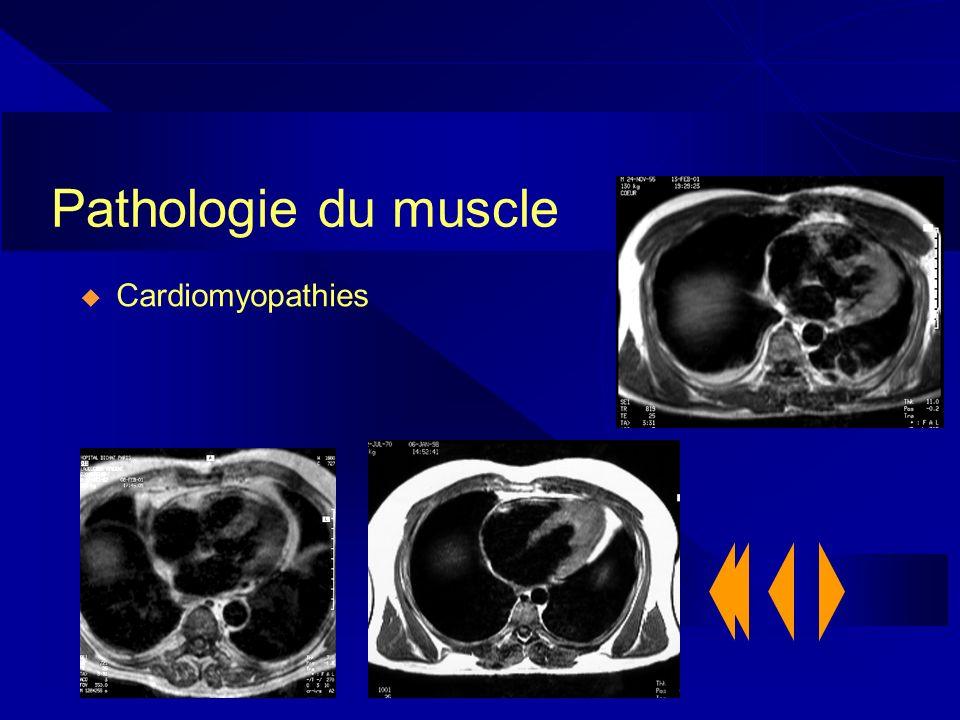Pathologie du muscle Cardiomyopathies