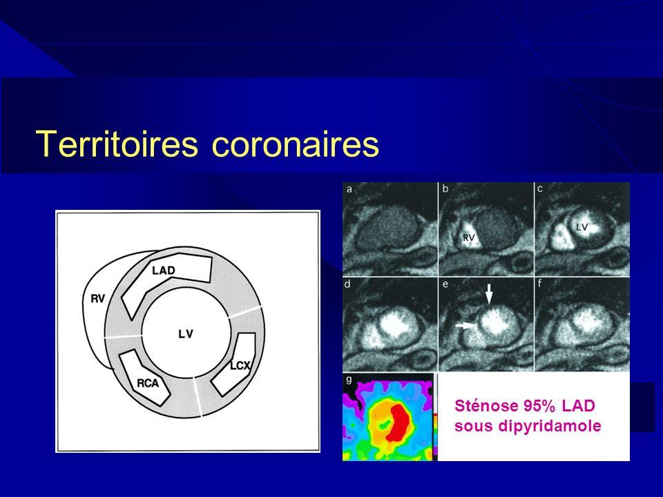 Territoires coronaires Sténose 95% LAD sous dipyridamole