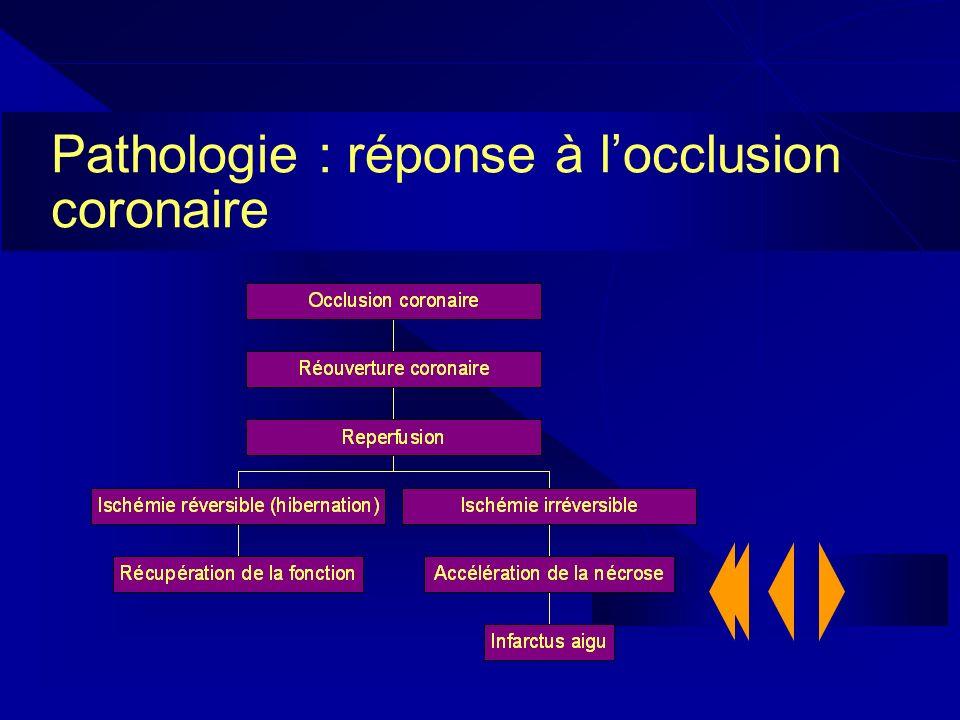 Pathologie : réponse à locclusion coronaire