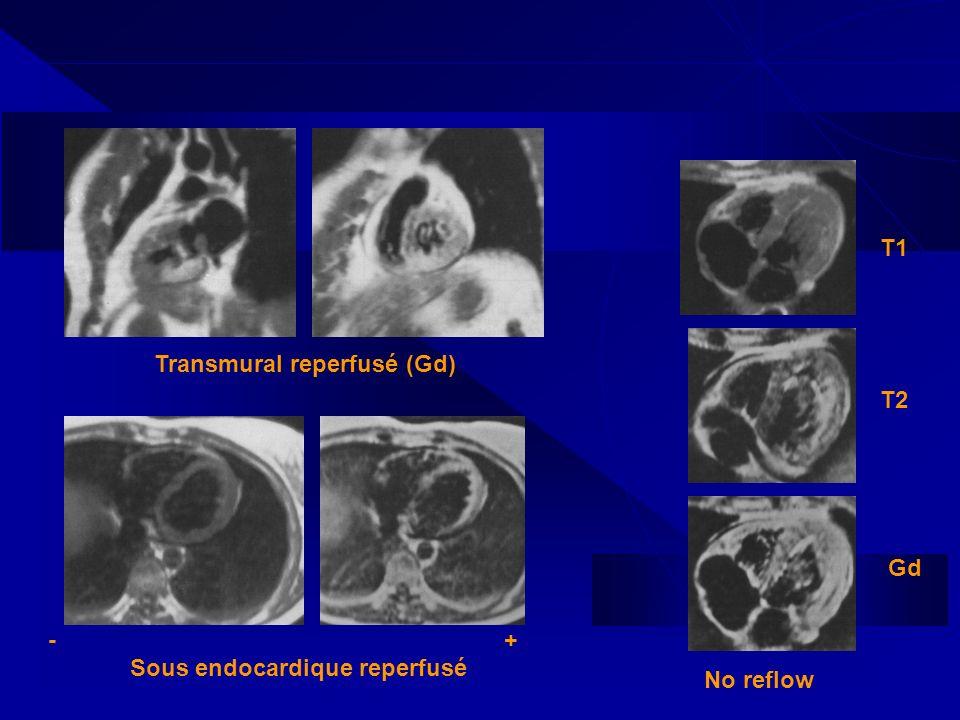 Transmural reperfusé (Gd) Sous endocardique reperfusé -+ T1 T2 Gd No reflow
