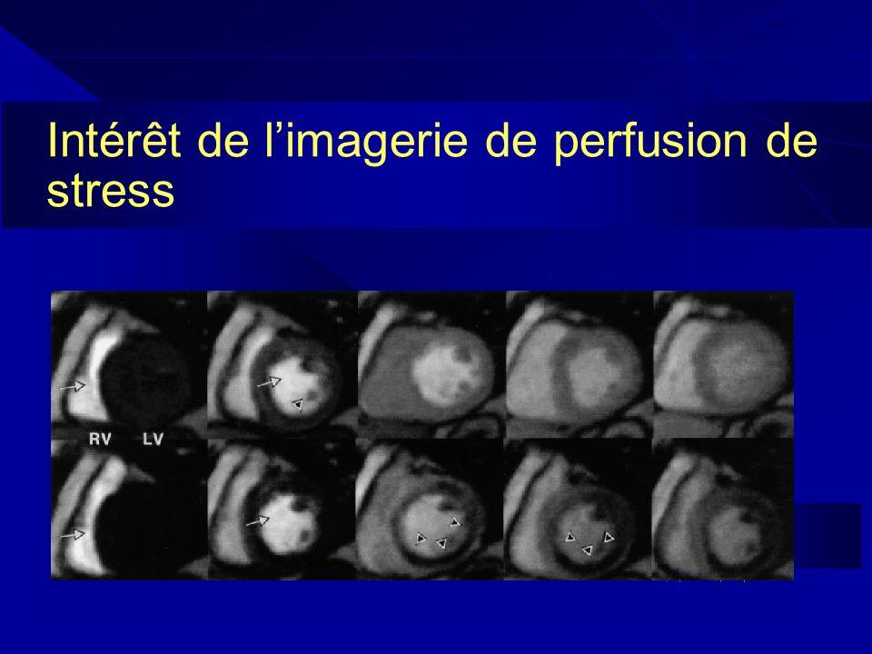 Intérêt de limagerie de perfusion de stress