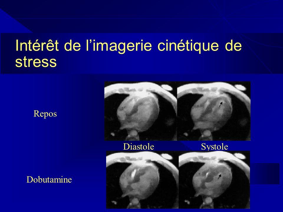 Intérêt de limagerie cinétique de stress Repos DiastoleSystole Dobutamine