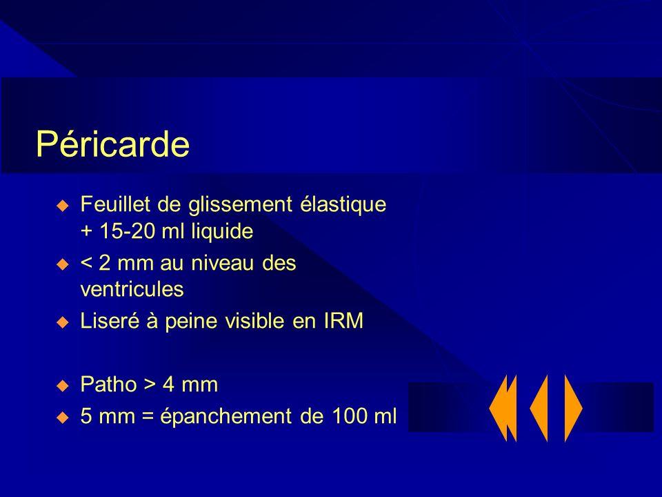 Péricarde Feuillet de glissement élastique + 15-20 ml liquide < 2 mm au niveau des ventricules Liseré à peine visible en IRM Patho > 4 mm 5 mm = épanc
