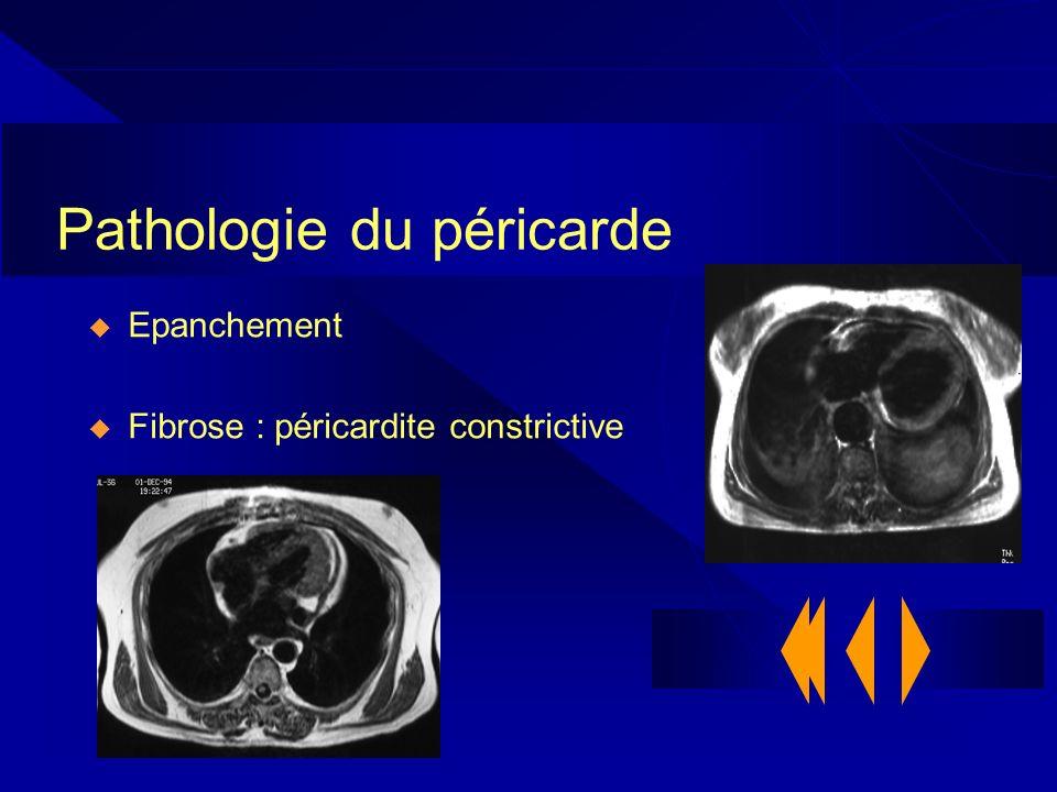 Pathologie du péricarde Epanchement Fibrose : péricardite constrictive
